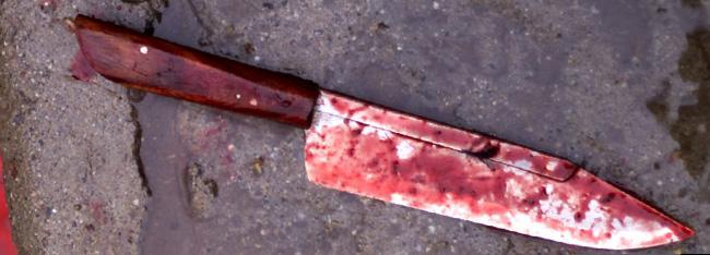 На Тернопільщині десятилітня дівчинка потрапила до реанімації, а її кривдник на операційний стіл