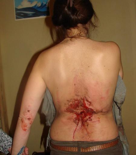 """""""Уже нет ни страха, ни шока"""": рассказ девушки, в которую попала граната"""
