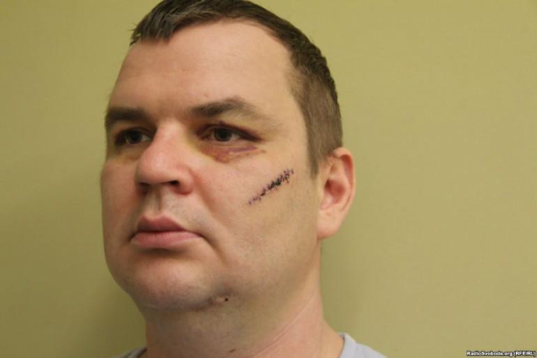 Фотографії побоїв на тілі лідера Автомайдану Дмитра Булатова