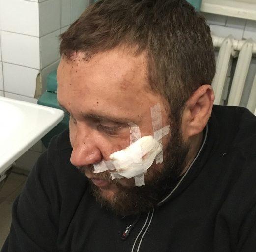 На трасі Тернопіль-Львів обстріляли автомобіль
