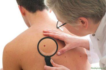 Рак шкіри: у Тернополі безкоштовно обстежать усіх бажаючих 13 квітня