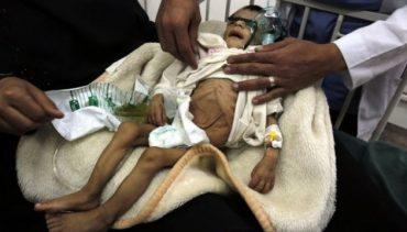У Ємені померли від голоду 85 тисяч дітей